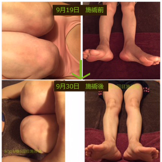 《膝ケア50代女性》【1回目9/5】【2回目9/9】・初回、膝と腰が痛いとの事でケア、腰の方がご自身の不調が多かったので、坐骨神経のケアも含めて、ベットにうつ伏せからスタート。お帰りになられた後、『腰がすごく楽になった!散歩も足取り軽く行けました』とお喜びのメールあり。【3回目9/19】・『腰は調子いいままです(^^)。実は、私、以前から左足の開きが気になってて。もうこれは治らないとあきらめてたんですけど。それと、膝を胸元に引き寄せた時に、両足の高さが揃わないのもずっと気になってました。でも初回に受けて帰ったあと、胸元に引き寄せてみたら、高さが以前より揃っていて』と2回目終わった後のメールでご連絡いただけで。その前までは伺えなかったお話しでしたが、腰がよくなられたので、ではこちらも、とお話しくださったのでしょうか(^^)過去にゴルフのキャディーさんをされてた事があり、その時に片側からいつも乗り降りをしていて、この開きは、もう職業柄かなとあきらめてらしたとの事。ではぜひチャレンジしましょうよ!と今回は腰は調子よいとの事でしたので、痛いと言われた左膝と。左足の開きも鑑みて、フォローアップで習った外反母趾のケアもして前面を重点的に。この時点で楢林先生に上記の写真付きでご報告し、さらにどうすればいいかご指導いただきました。そして、そのアドバイスを元にケア。【4回目9/26】・腰がまた少し痛くなってきたとの事で、また初回と同じように背面からケア。とアドバイスいただいた箇所もケア。【5回目9/30】・車の長時間運転が最近多いとの事で、前回4回目にした直後は腰も調子良かったんだが、今日はまた腰、特にお尻のあたりが調子悪いとのこと。・背面から坐骨神経のケアをして、今回はお客様にうかがいながら、左側のお尻を特に重点的に、フォローアップで習った肘を使っての手技を加えました。ほとんどの時間をお尻に費やして、前面は軽く短時間でする程度。左膝の内側が痛いと言われてましたので、少し施術時間が短すぎたかな?と私自身は心の中で思ってましたが、お帰りになられてから聞きましたら、『膝痛くないです!私も膝の時間短いなと思ってましたが、お尻なんですね~!腰も楽になってますし、これ、膝ケアという名前ではもったいないですよ!膝だけではなく腰もよくなりますよ~(^^)!』とありがたいお言葉をいただけました。今日のお写真はこちら。左足の開きのお話しを聞かせてもらったのは3回目の施術からですが、3回目のお写真と今回のお写真を比べると、楢林先生もお皿の向きが左右揃ってきて、良かったのでは(^^)と言っていただき、またお写真と私のどこの筋肉が硬かったとか、こりがあったとかご報告した内容から、『左のお尻硬くなかったですか?』とご連絡あり。とても硬かったです!と報告しましたら、『脚が外に向くのもお尻相当に関係してそうですね。臀部の筋肉が縮むと大腿骨が外側に回ってしまうから』とアドバイスいただきました。私もお客様も、お尻のこりが、膝や足の開きに関係しているとわかって、とても勉強になり、2人で喜びあいました(^^)
